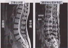 脊柱 管 狭窄 症